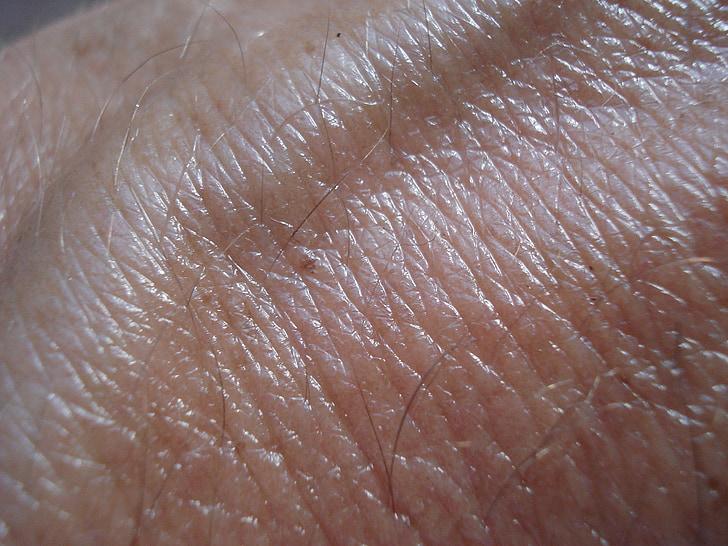 pell, vena, marró, càncer de pell, humà