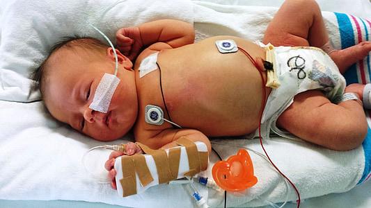 novorozence, nemocný, dítě, lékařské, zdraví, nemocnice, Děvče