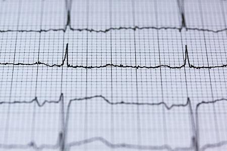 ECG, electrocardiograma, mèdica, batec del cor, cor, freqüència, corba