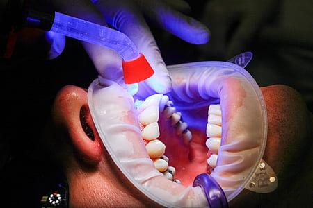 dentista, faceta, llum UV, curat, dents, boca, tractament