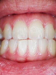 dents, boca, dental, dentista, dent, llavis, oral