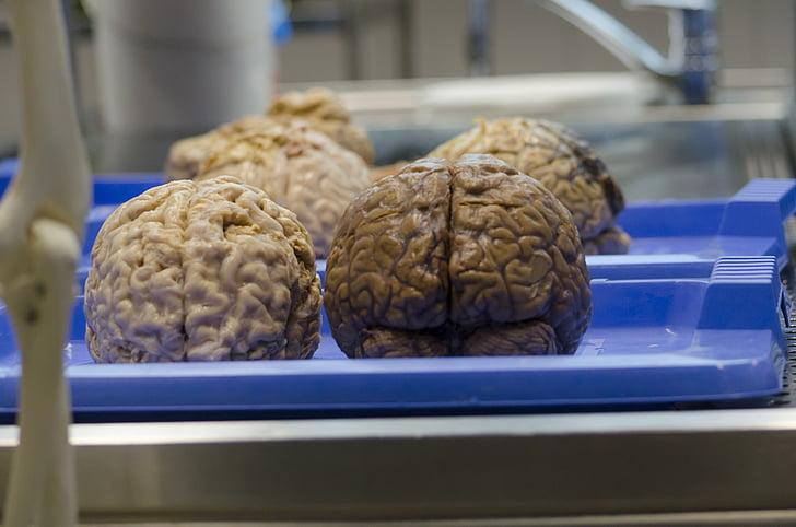 hjernen, medicinske videnskab, kirurgi, Hospital, kroppen af