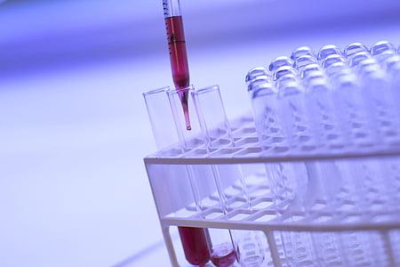 wetenschap, biologie, vloeistof, analyse, traktatie, behandeling, screening