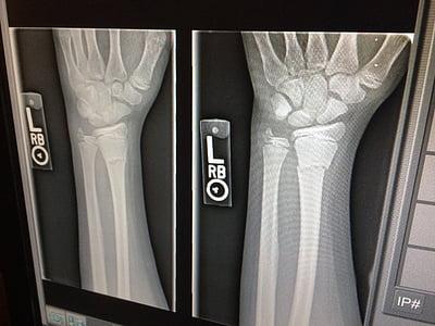 raigs x, mèdica, trencat, braç, metge, raigs x, Medicina