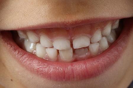 dents, somriure de nen, nen, dental, somriure de dents, dent, higiene