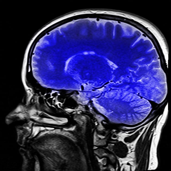 responsable, ressonància magnètica, MRT, raigs x, imatge de raigs x, cervell, blau