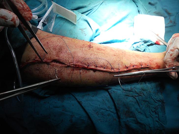 operatsioon, ortopeediline, arm, haigla, arst, Tervishoid, ravimi
