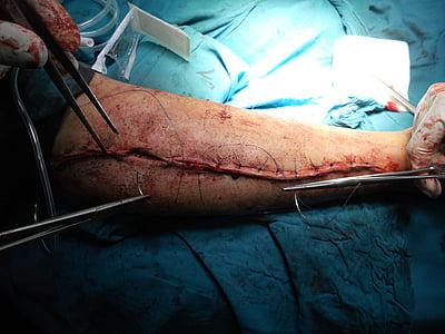 手术, 骨科, 手臂, 医院, 医生, 医疗保健, 医学
