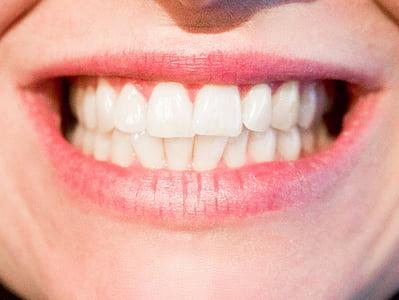 tænder, tandlæge, Dental, munden, tand, mundtlig, tandpleje