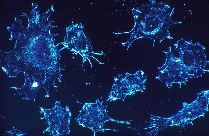 rakovinné buňky, buňky, skenování, elektronový mikroskop skenování, technologie, mikroskopické, lékařské