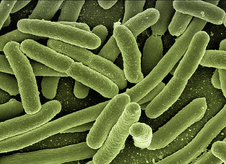 koli bacteriën, Escherichia coli, bacteriën, ziekte, ziekteverwekkers, microscopie, elektronenmicroscopie
